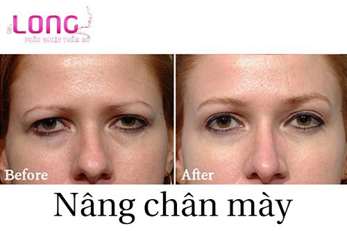nang-chan-may-co-gay-anh-huong-gi-khong-1
