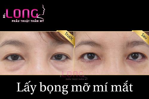 co-nen-phau-thuat-lay-bong-mo-mat-hay-khong-1