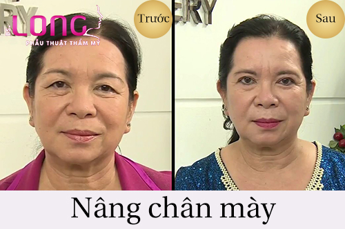 nang-chan-may-bang-botox-co-an-toan-khong-2