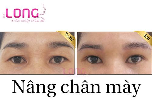 tim-hieu-ve-phuong-phap-nang-chan-may-1