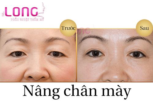 nang-chan-may-gia-bao-nhieu-va-co-dat-khong-1