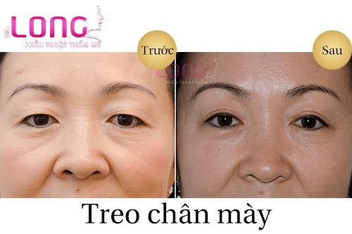 treo-chan-my-la-phuong-phap-tham-my-the-nao-2