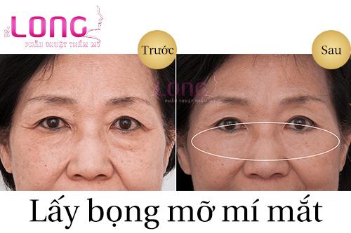 chi-phi-phau-thuat-lay-bong-mo-mi-mat-dat-khong-1