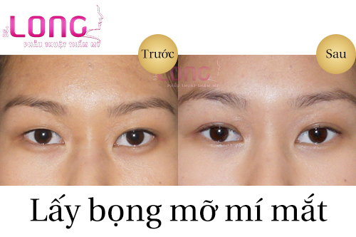phau-thuat-lay-bong-mo-mat-duoi-co-gi-dac-biet-1