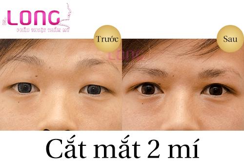 cat-mat-2-mi-co-lay-mo-mi-mat-duoc-khong-1