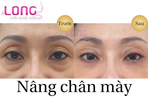 phau-thuat-nang-chan-may-xoa-nep-nhan-1