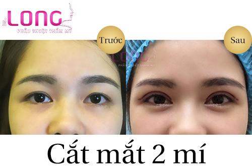 bi-liet-co-co-cat-mat-2-mi-duoc-khong-1