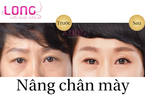 co-bao-nhieu-phuong-phap-nang-chan-may-chay-xe-1