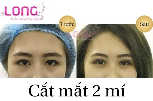 thoi-gian-phuc-hoi-sau-khi-cat-mat-2-mi-1