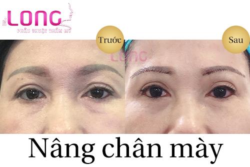 xoa-nep-nhan-bang-nang-chan-may-duoc-khong-1
