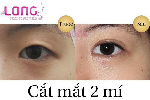 cat-mat-2-mi-duoc-thuc-hien-nhu-the-nao-1