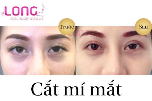 tieu-chuan-doi-mat-hoan-hao-khi-cat-mat-2-mi-1