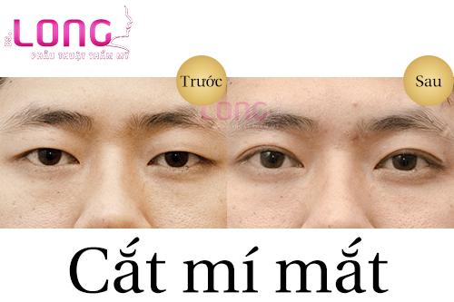 tao-mat-2-mi-bang-ki-thuat-cat-mat-2-mi-vinh-vien-1