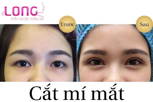3-nguyen-tac-an-toan-truoc-khi-cat-mi-mat-1