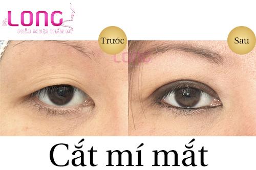 cat-mat-2-mi-gia-bao-nhieu-tien-nam-2019-1