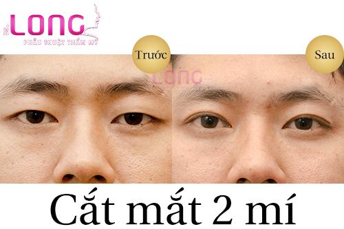 phuong-phap-tao-mat-2-mi-nao-tot-nhat-hien-nay-1
