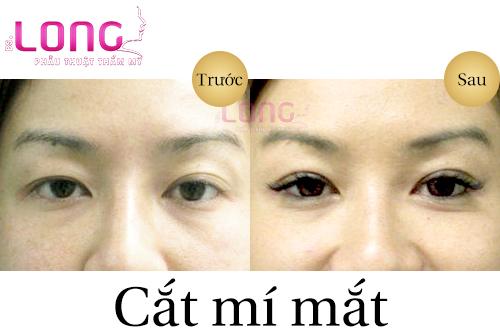 phaut-thuat-cat-mat-han-quoc-la-gi-1