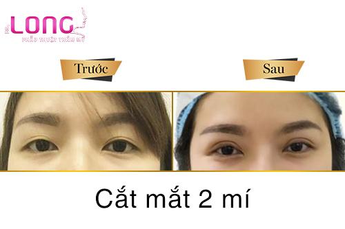 sau-cat-mat-2-mi-co-the-gap-phai-bien-chung-nao-1