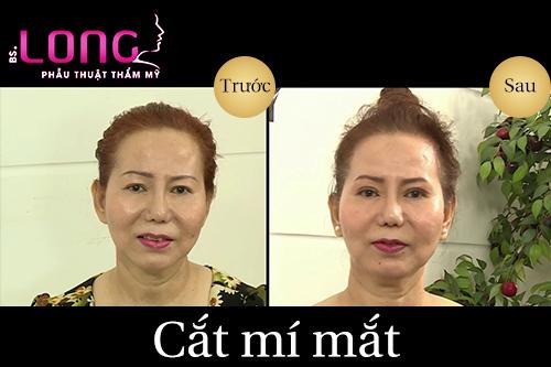 nguoi-cat-mat-2-mi-khong-deu-co-sua-lai-duoc-khong-1